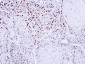 Immunohistochemistry (Formalin/PFA-fixed paraffin-embedded sections) - Anti-Cellular Apoptosis Susceptibility/CSE1L antibody (ab96755)