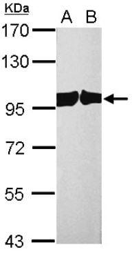 Western blot - Anti-Cellular Apoptosis Susceptibility/CSE1L antibody (ab96755)