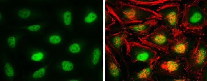 Immunocytochemistry/ Immunofluorescence - Anti-Cellular Apoptosis Susceptibility/CSE1L antibody (ab96755)