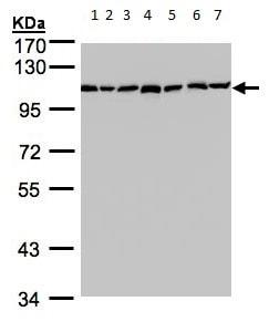 Western blot - Anti-GANAB antibody (ab96757)