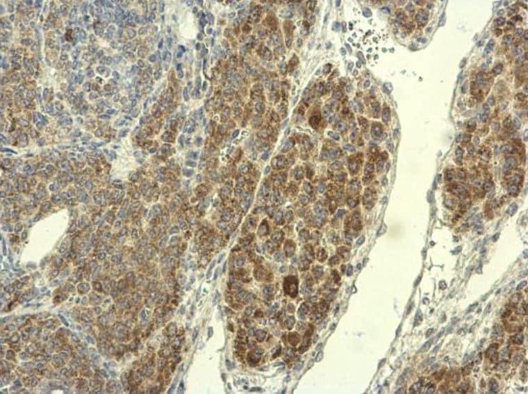 Immunohistochemistry (Formalin/PFA-fixed paraffin-embedded sections) - Anti-PADI4 / PAD4 antibody (ab96758)