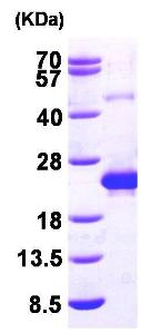 SDS-PAGE - Recombinant Human DCTD protein (ab96766)