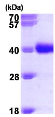SDS-PAGE - Recombinant Human GALE protein (ab96767)