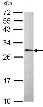 Western blot - Anti-DCXR antibody (ab96778)