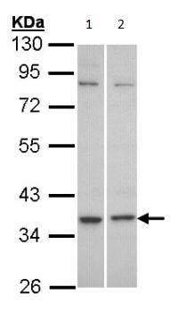 Western blot - Anti-GPCR C5L2 antibody (ab96808)