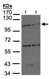 Western blot - Anti-BMPR2 antibody (ab96826)