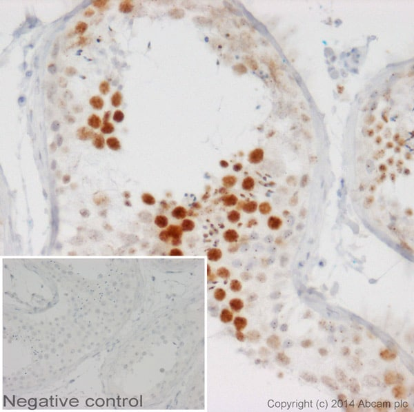 Immunohistochemistry (Formalin/PFA-fixed paraffin-embedded sections) - Goat Anti-Mouse IgG2b heavy chain (HRP) (ab97250)