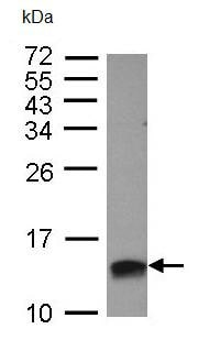 Western blot - Anti-HMGA2 antibody (ab97276)