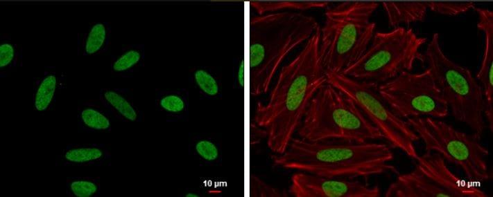 Immunocytochemistry/ Immunofluorescence - Anti-HMGA2 antibody (ab97276)
