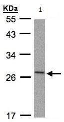 Western blot - Anti-IL-1RA antibody (ab97301)