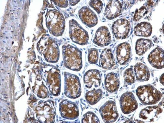 Immunohistochemistry (Formalin/PFA-fixed paraffin-embedded sections) - Anti-MVP antibody (ab97311)
