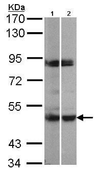 Western blot - Anti-PRAK/MK5 antibody (ab97332)