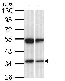 Western blot - Anti-SH3 containing Grb 2 like 1 protein antibody (ab97336)
