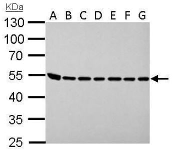 Western blot - Anti-Argininosuccinate Lyase antibody (ab97370)