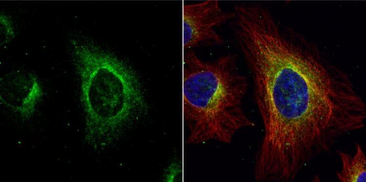Immunocytochemistry/ Immunofluorescence - Anti-Argininosuccinate Lyase antibody (ab97370)