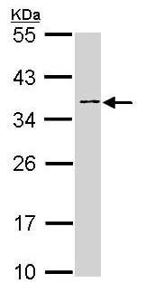 Western blot - Anti-Blood Group Antigen Precursor antibody (ab97372)