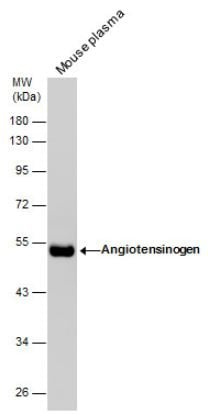 Western blot - Anti-Angiotensinogen antibody (ab97381)