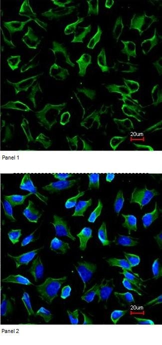 Immunocytochemistry/ Immunofluorescence - Anti-NPR-C antibody (ab97389)