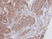 Immunohistochemistry (Formalin/PFA-fixed paraffin-embedded sections) - Anti-DPP3 antibody (ab97437)