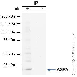 Immunoprecipitation - Anti-ASPA antibody (ab97454)