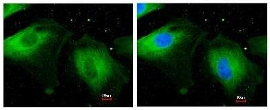 Immunocytochemistry/ Immunofluorescence - Anti-Filamin B antibody (ab97457)