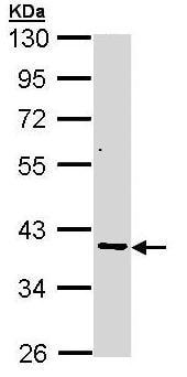 Western blot - Anti-AKR7A2 antibody (ab97458)