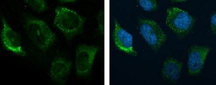 Immunocytochemistry/ Immunofluorescence - Anti-C3 antibody (ab97462)