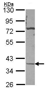 Western blot - Anti-Carbonic Anhydrase XI antibody (ab97470)