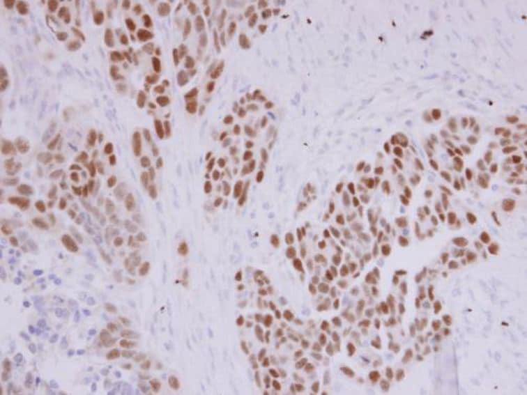 Immunohistochemistry (Formalin/PFA-fixed paraffin-embedded sections) - Anti-PAX8 antibody (ab97477)