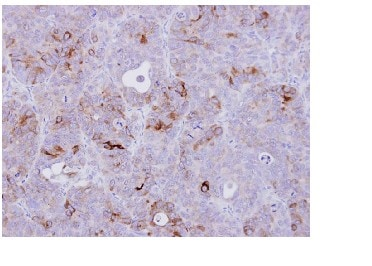 Immunohistochemistry (Formalin/PFA-fixed paraffin-embedded sections) - Anti-CD74 antibody (ab97479)