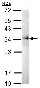 Western blot - Anti-CD74 antibody (ab97479)
