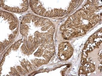 Immunohistochemistry (Formalin/PFA-fixed paraffin-embedded sections) - Anti-GTPase HRAS antibody (ab97488)