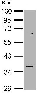 Western blot - Anti-Thymidylate Synthase antibody (ab97510)