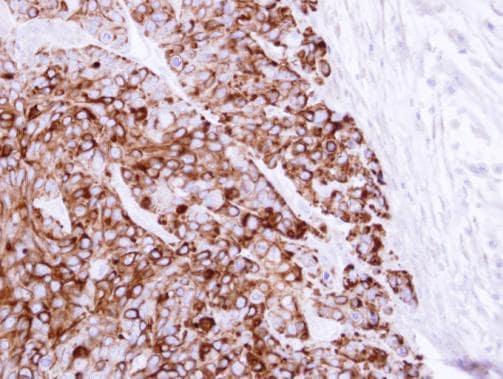 Immunohistochemistry (Formalin/PFA-fixed paraffin-embedded sections) - Anti-Cytokeratin 20 antibody - Cytoskeleton Marker (ab97511)