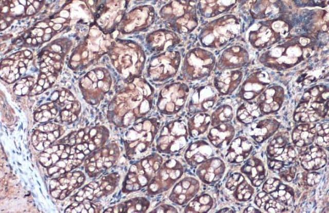 Anti-Villin antibody (ab97512)