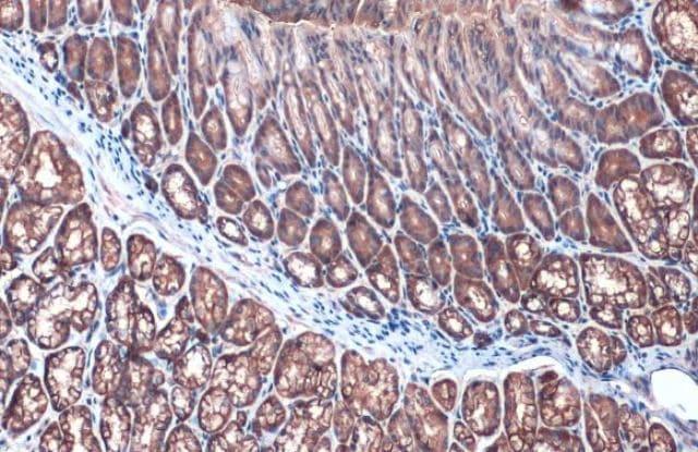Immunohistochemistry (Formalin/PFA-fixed paraffin-embedded sections) - Anti-Villin antibody (ab97512)
