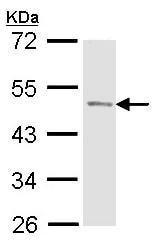 Western blot - Anti-Prostatic Acid Phosphatase antibody (ab97517)