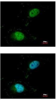 Immunocytochemistry/ Immunofluorescence - Anti-SAFB antibody (ab97520)