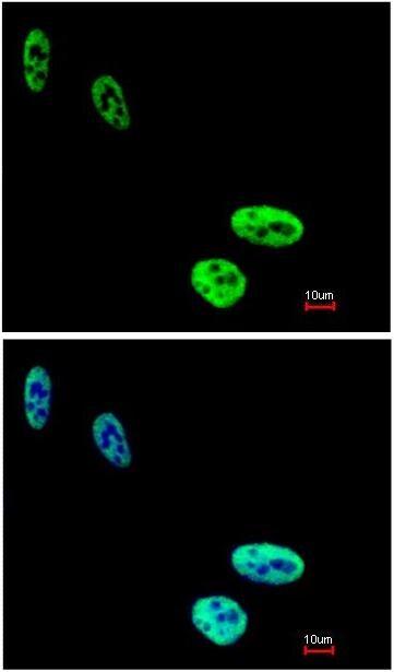 Immunocytochemistry/ Immunofluorescence - Anti-hnRNP C1 + C2/HNRNPC antibody (ab97541)