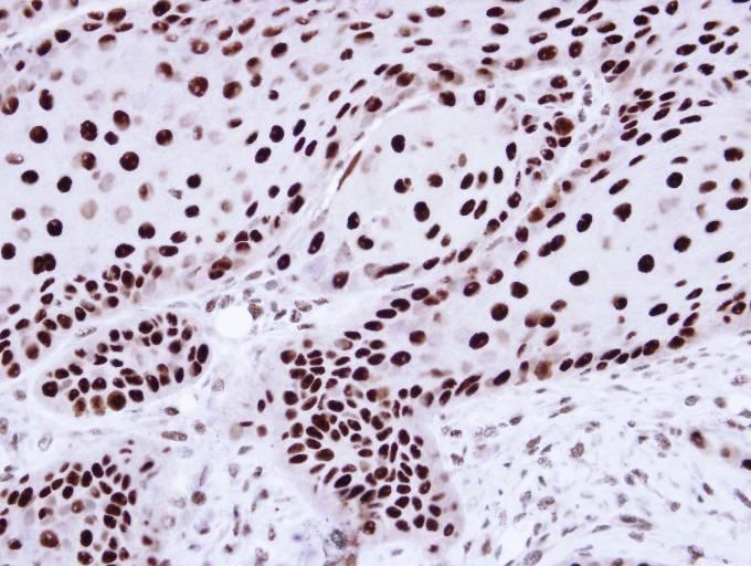 Immunohistochemistry (Formalin/PFA-fixed paraffin-embedded sections) - Anti-hnRNP C1 + C2/HNRNPC antibody (ab97541)