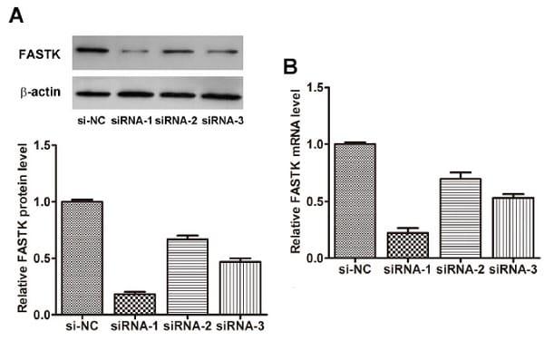 FASTK siRNA interference assay - Anti-FASTK antibody (ab97544)