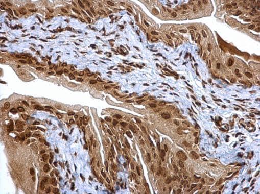 Immunohistochemistry (Formalin/PFA-fixed paraffin-embedded sections) - Anti-Proteasome subunit alpha type 6 antibody (ab97563)