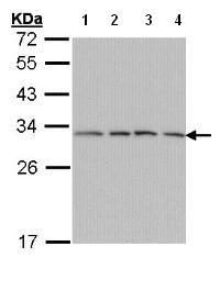 Western blot - Anti-PSMA7 antibody (ab97564)