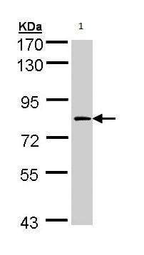 Western blot - Anti-Factor XIIIa antibody (ab97636)