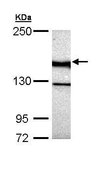 Western blot - Anti-UNC13B antibody (ab97664)