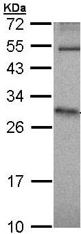 Western blot - Anti-HPRT antibody (ab97698)