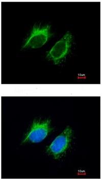 Immunocytochemistry/ Immunofluorescence - Anti-Inhibin beta A antibody (ab97705)