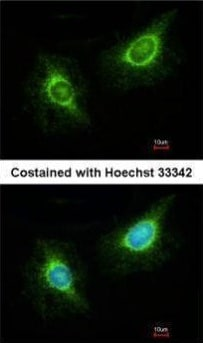 Immunocytochemistry/ Immunofluorescence - Anti-LAMB3 antibody (ab97765)
