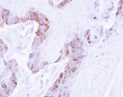 Immunohistochemistry (Formalin/PFA-fixed paraffin-embedded sections) - Anti-LIMK2 antibody (ab97766)