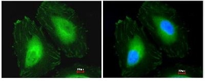 Immunocytochemistry/ Immunofluorescence - Anti-CRYBA4 antibody (ab97771)
